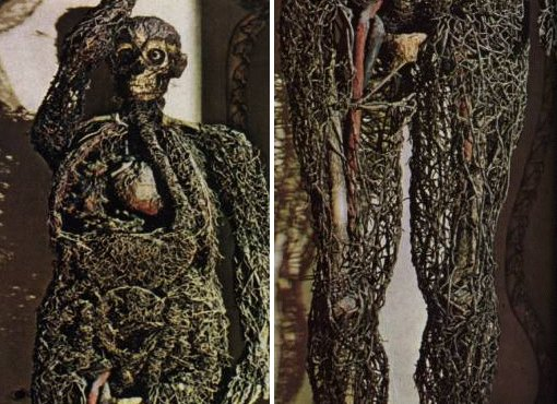La varice variqueuse sur les pieds à qui sadresser